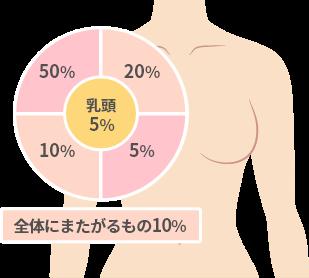 乳がんが出来やすいポイント